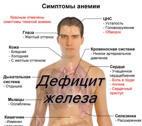 Чем опасен недостаток железа