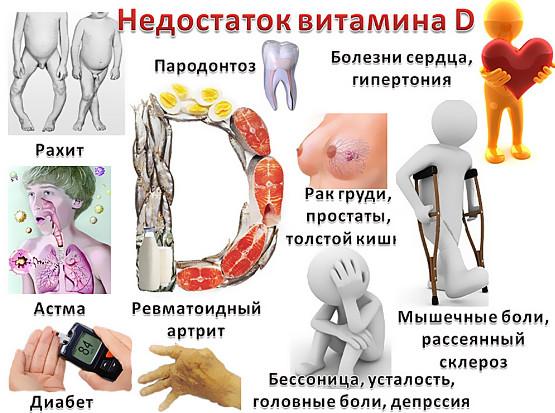 Нехватка витамина Д